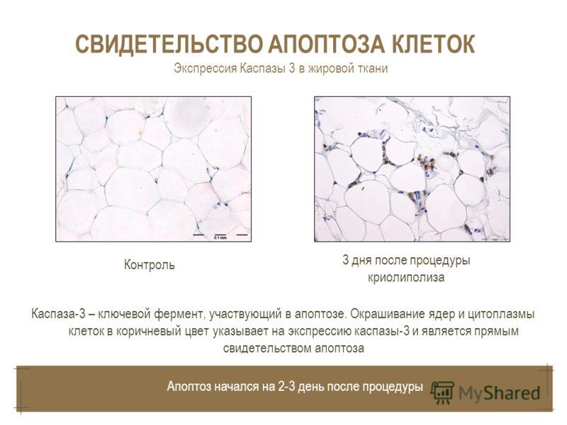 Каспаза-3 – ключевой фермент, участвующий в апоптозе. Окрашивание ядер и цитоплазмы клеток в коричневый цвет указывает на экспрессию каспазы-3 и является прямым свидетельством апоптоза 3 дня после процедуры криолиполиза Контроль СВИДЕТЕЛЬСТВО АПОПТОЗ