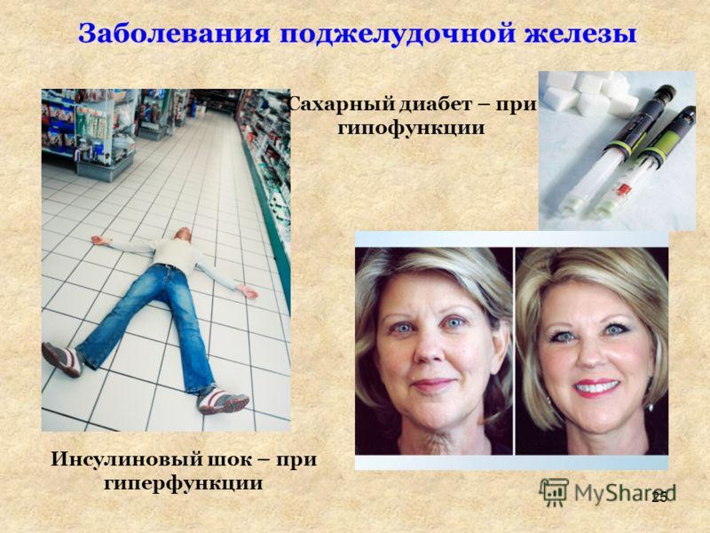 Инсулиновый шок – при гиперфункции Сахарный диабет – при гипофункции Заболевания поджелудочной железы 25