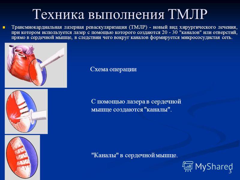 Техника выполнения ТМЛР Трансмиокардиальная лазерная реваскуляризация (ТМЛР) - новый вид хирургического лечения, при котором используется лазер с помощью которого создаются 20 - 30