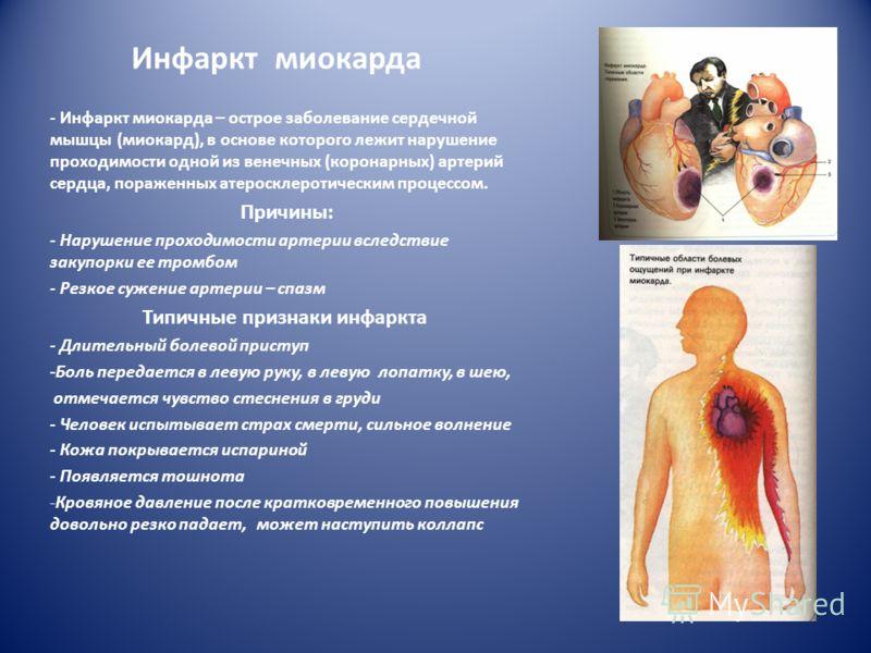 Инфаркт миокарда - Инфаркт миокарда – острое заболевание сердечной мышцы (миокард), в основе которого лежит нарушение проходимости одной из венечных (коронарных) артерий сердца, пораженных атеросклеротическим процессом. Причины: - Нарушение проходимо
