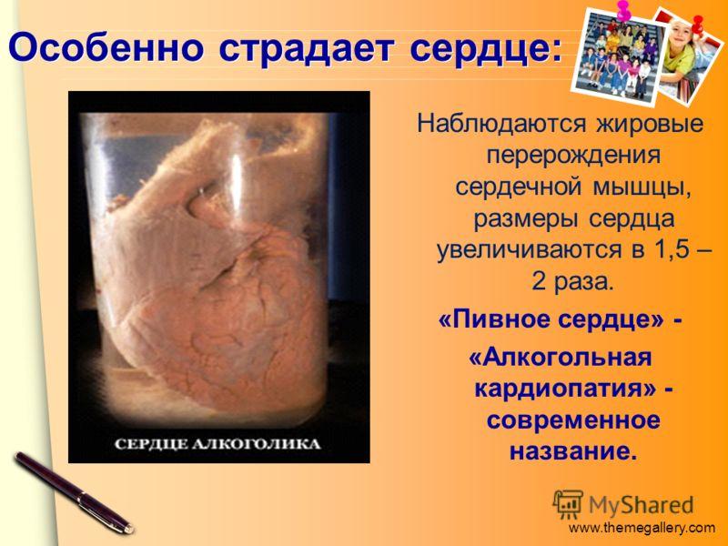 www.themegallery.com Особенно страдает сердце: Наблюдаются жировые перерождения сердечной мышцы, размеры сердца увеличиваются в 1,5 – 2 раза. «Пивное сердце» - «Алкогольная кардиопатия» - современное название.