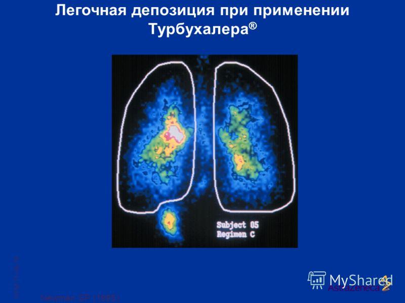 Newman SP (1995) Легочная депозиция при применении Турбухалера ® SYM 11-04-18