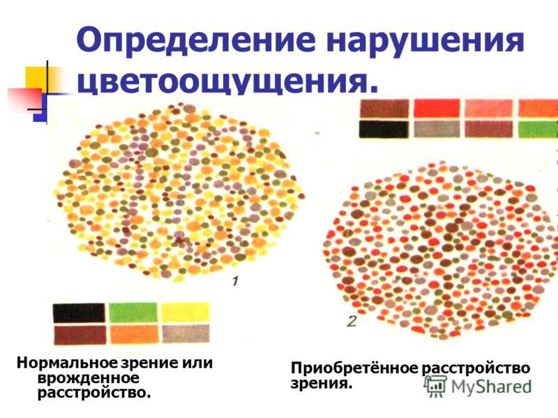 Определение нарушения цветоощущения. Нормальное зрение или врожденное расстройство. Приобретённое расстройство зрения.