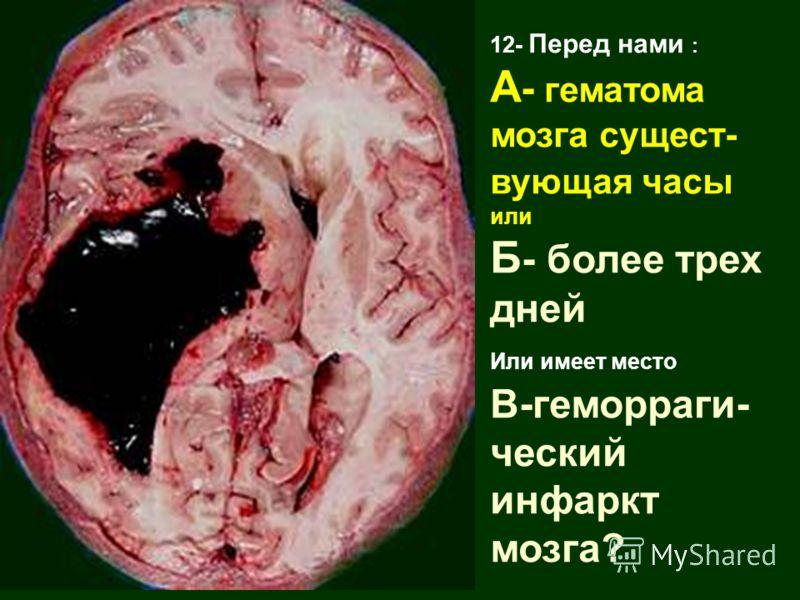 12- Перед нами : А - гематома мозга сущест- вующая часы или Б - более трех дней Или имеет место В-геморраги- ческий инфаркт мозга?