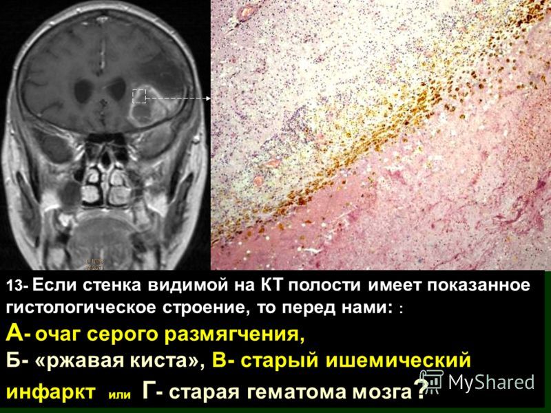 13- Если стенка видимой на КТ полости имеет показанное гистологическое строение, то перед нами: : А - очаг серого размягчения, Б- «ржавая киста», В- старый ишемический инфаркт или Г - старая гематома мозга ?