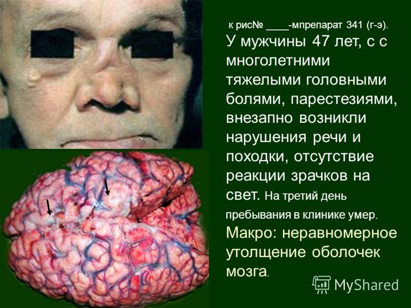 к рис ____-мпрепарат 341 (г-э). У мужчины 47 лет, с с многолетними тяжелыми головными болями, парестезиями, внезапно возникли нарушения речи и походки, отсутствие реакции зрачков на свет. На третий день пребывания в клинике умер. Макро: неравномерное