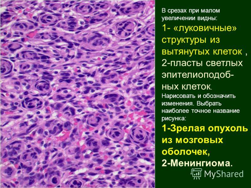 В срезах при малом увеличении видны: 1- «луковичные» структуры из вытянутых клеток, 2-пласты светлых эпителиоподоб- ных клеток. Нарисовать и обозначить изменения. Выбрать наиболее точное название рисунка: 1-Зрелая опухоль из мозговых оболочек, 2-Мени