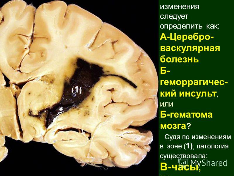 изменения следует определить как: А-Церебро- васкулярная болезнь Б- геморрагичес- кий инсульт, или Б-гематома мозга ? Судя по изменениям в зоне ( 1), патология существовала : В-часы, или Г-дни ? Г-недели (1)(1)