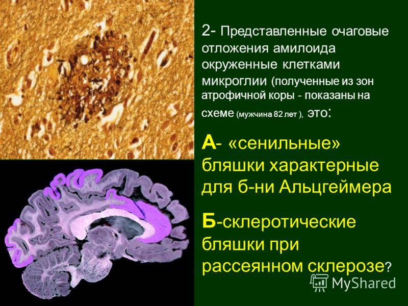 2- Представленные очаговые отложения амилоида окруженные клетками микроглии (полученные из зон атрофичной коры - показаны на схеме (мужчина 82 лет ), это : А - «сенильные» бляшки характерные для б-ни Альцгеймера Б -склеротические бляшки при рассеянно