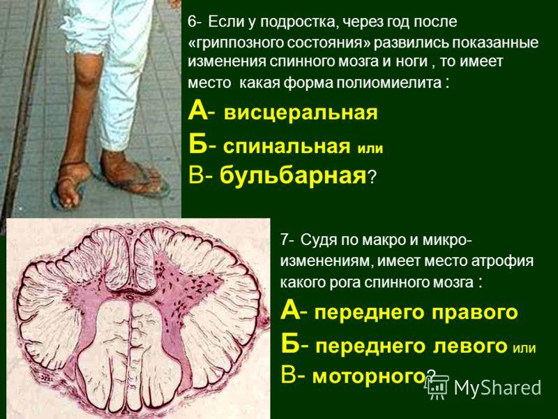 6- Если у подростка, через год после «гриппозного состояния» развились показанные изменения спинного мозга и ноги, то имеет место какая форма полиомиелита : А - висцеральная Б - спинальная или В- бульбарная ? 7- Судя по макро и микро- изменениям, име