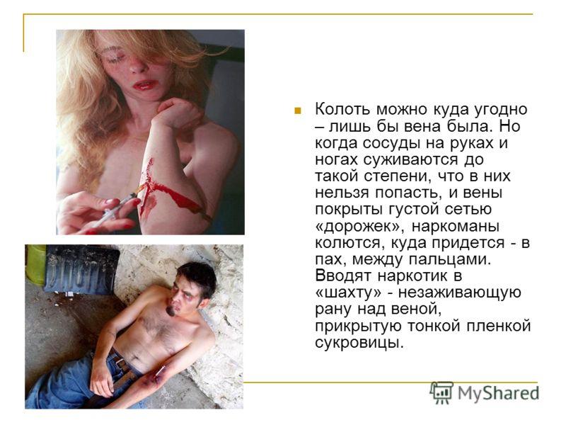 Колоть можно куда угодно – лишь бы вена была. Но когда сосуды на руках и ногах суживаются до такой степени, что в них нельзя попасть, и вены покрыты густой сетью «дорожек», наркоманы колются, куда придется - в пах, между пальцами. Вводят наркотик в «