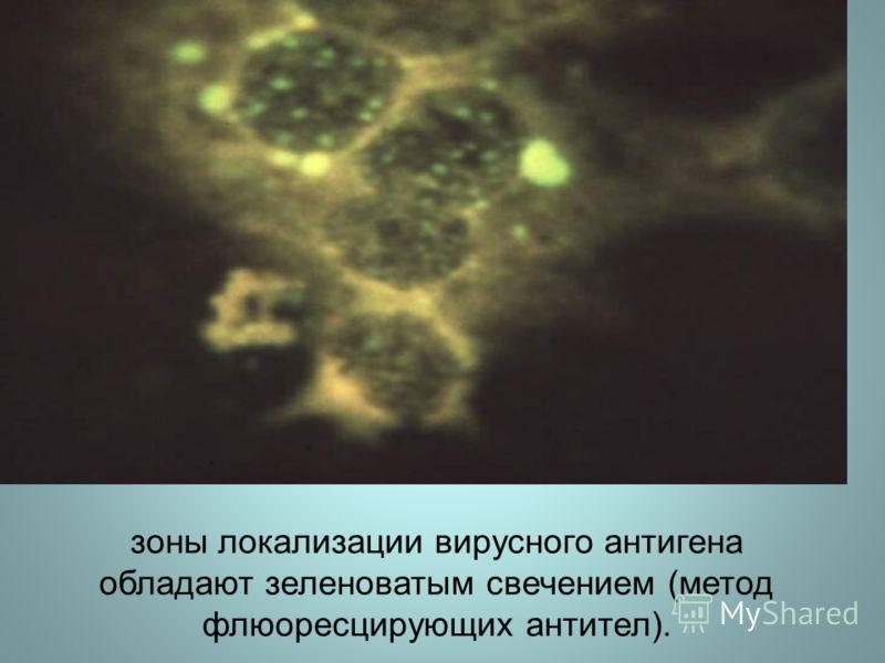 зоны локализации вирусного антигена обладают зеленоватым свечением (метод флюоресцирующих антител).
