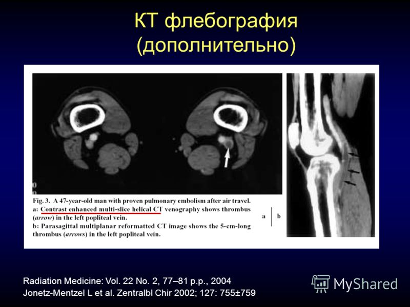 КТ флебография (дополнительно) Jonetz-Mentzel L et al. Zentralbl Chir 2002; 127: 755±759 Radiation Medicine: Vol. 22 No. 2, 77–81 p.p., 2004