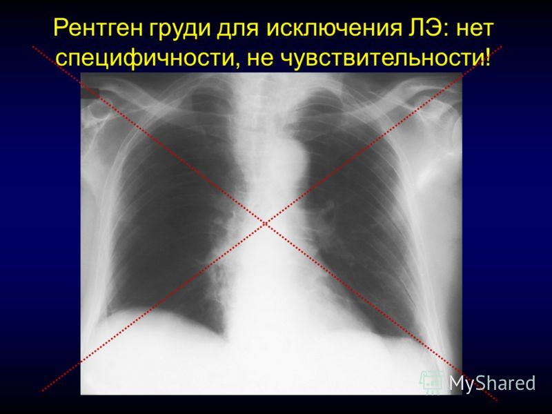 Рентген груди для исключения ЛЭ: нет специфичности, не чувствительности!
