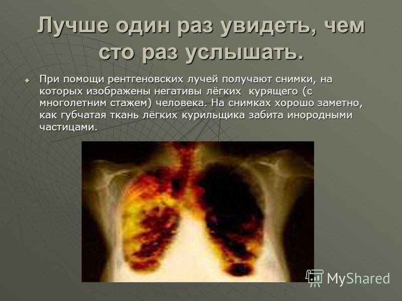 Лучше один раз увидеть, чем сто раз услышать. При помощи рентгеновских лучей получают снимки, на которых изображены негативы лёгких курящего (с многолетним стажем) человека. На снимках хорошо заметно, как губчатая ткань лёгких курильщика забита иноро