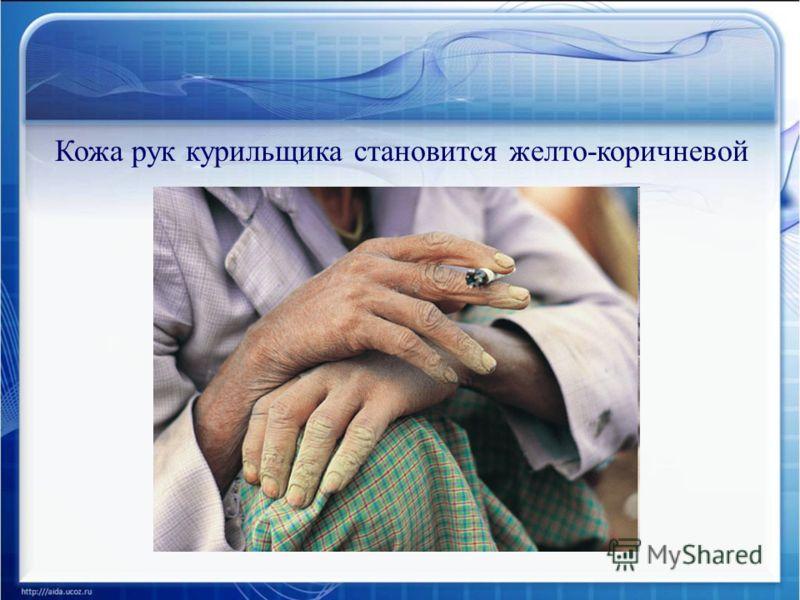 Кожа рук курильщика становится желто-коричневой