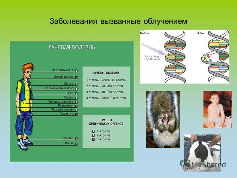 Заболевания вызванные облучением