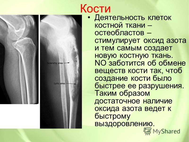 Кости Деятельность клеток костной ткани – остеобластов – стимулирует оксид азота и тем самым создает новую костную ткань. NO заботится об обмене веществ кости так, чтоб создание кости было быстрее ее разрушения. Таким образом достаточное наличие окси