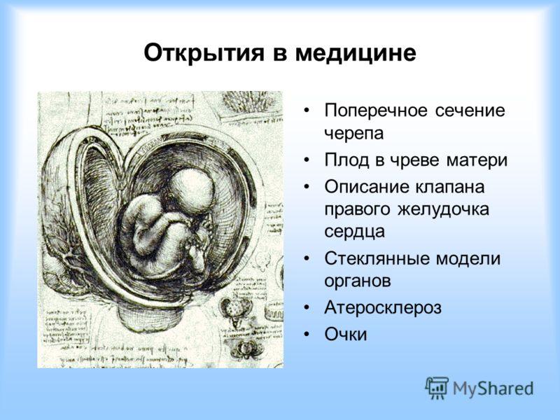 Открытия в медицине Поперечное сечение черепа Плод в чреве матери Описание клапана правого желудочка сердца Стеклянные модели органов Атеросклероз Очки