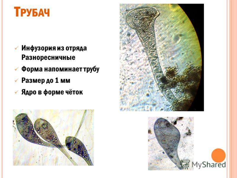 А РЦЕЛЛА корненожка из отряда Раковинные амебы имеет округлую раковину окраска раковины светло- жёлтая, желтая, бурая или почти черная размер 100 - 200 мкм