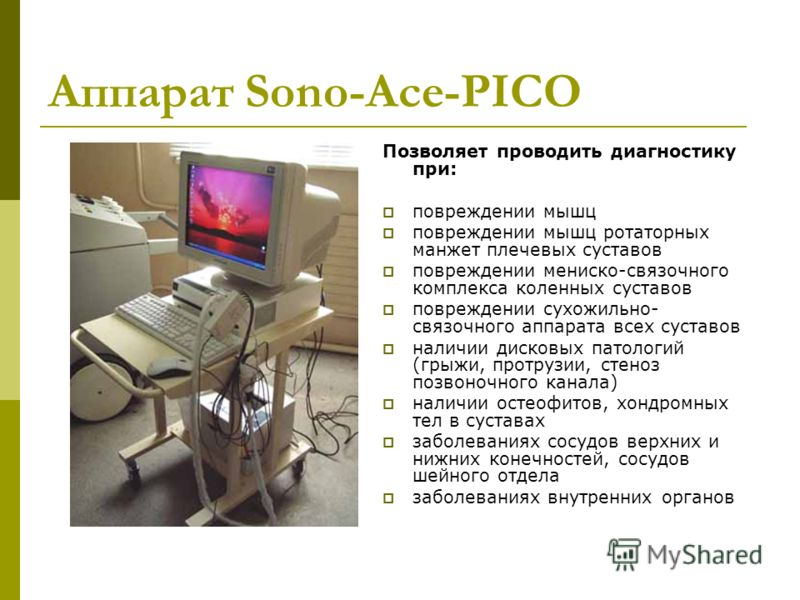 Аппарат Sono-Асе-PICO Позволяет проводить диагностику при: повреждении мышц повреждении мышц ротаторных манжет плечевых суставов повреждении мениско-связочного комплекса коленных суставов повреждении сухожильно- связочного аппарата всех суставов нали