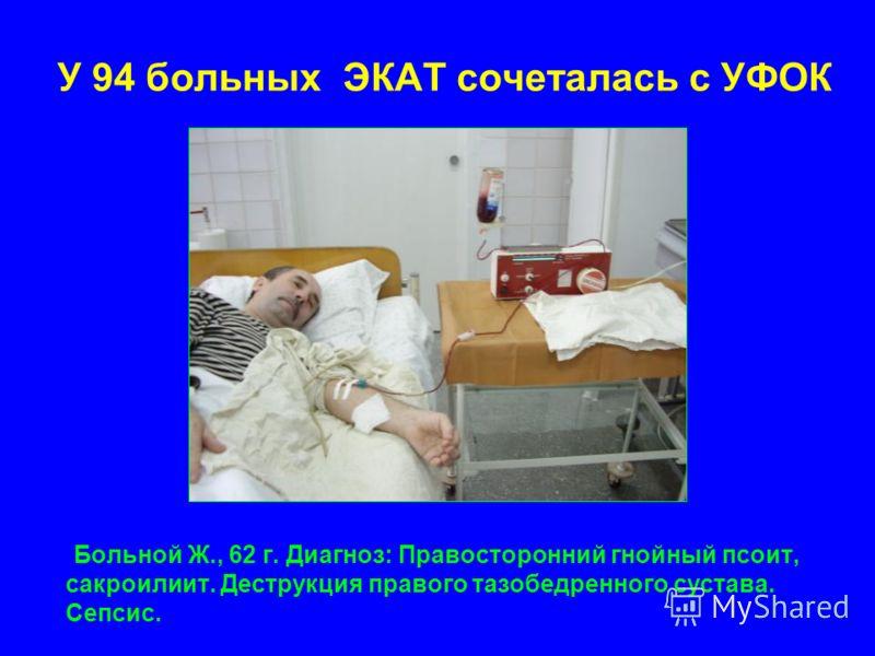 У 94 больных ЭКАТ сочеталась с УФОК Больной Ж., 62 г. Диагноз: Правосторонний гнойный псоит, сакроилиит. Деструкция правого тазобедренного сустава. Сепсис.