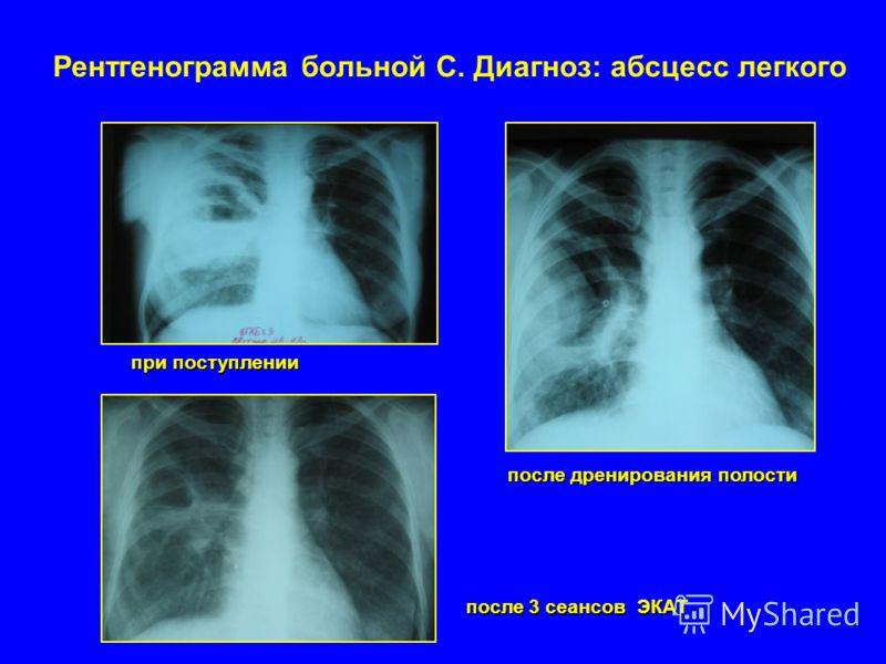 Рентгенограмма больной С. Диагноз: абсцесс легкого при поступлении после дренирования полости после 3 сеансов ЭКАТ