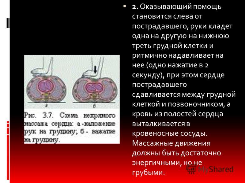 2. Оказывающий помощь становится слева от пострадавшего, руки кладет одна на другую на нижнюю треть грудной клетки и ритмично надавливает на нее (одно нажатие в 2 секунду), при этом сердце пострадавшего сдавливается между грудной клеткой и позвоночни