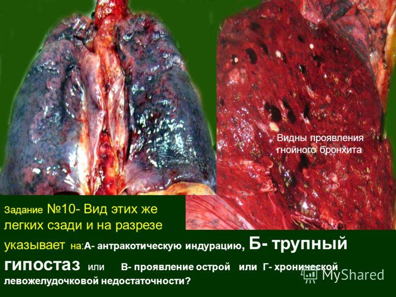 Задание 10- Вид этих же легких сзади и на разрезе указывает на:А- антракотическую индурацию, Б- трупный гипостаз или В- проявление острой или Г- хронической левожелудочковой недостаточности? Видны проявления гнойного бронхита