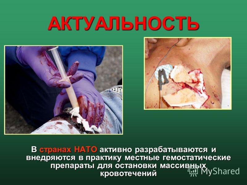 АКТУАЛЬНОСТЬ В cтранах НАТО активно разрабатываются и внедряются в практику местные гемостатические препараты для остановки массивных кровотечений