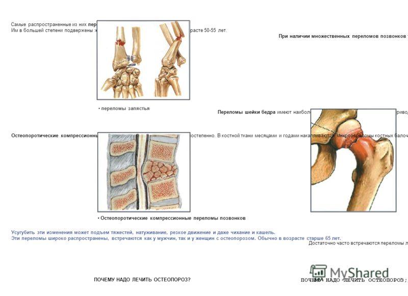Самые распространенные из них переломы запястья. Им в большей степени подвержены женщины в первые годы менопаузы в возрасте 50-55 лет. При наличии множественных переломов позвонков туловище укорачивается, живот выдается вперед и формируется выраженна