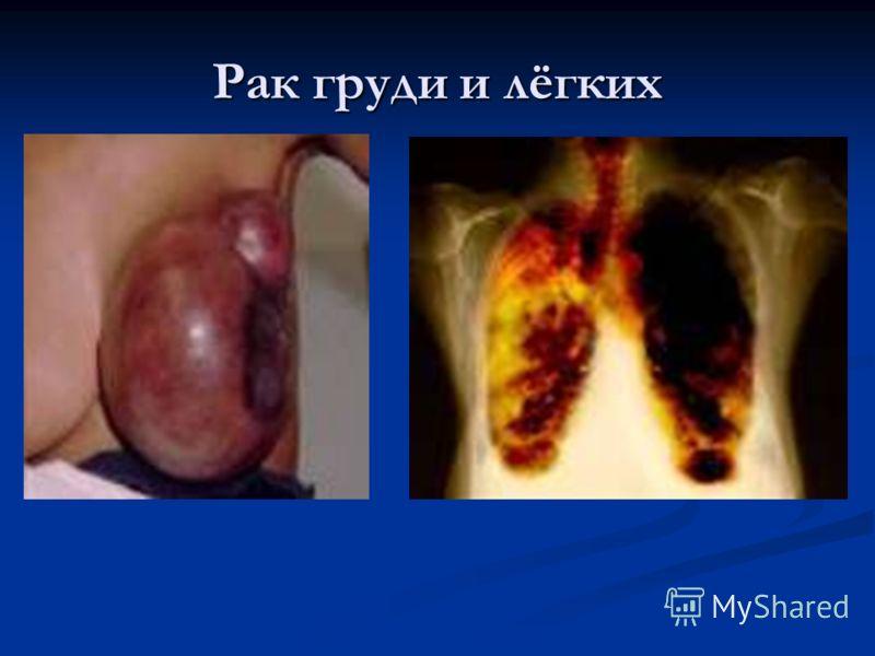 Рак груди и лёгких
