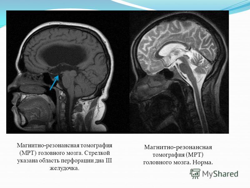 Магнитно-резонансная томография (МРТ) головного мозга. Норма. Магнитно-резонансная томография (МРТ) головного мозга. Стрелкой указана область перфорации дна III желудочка.