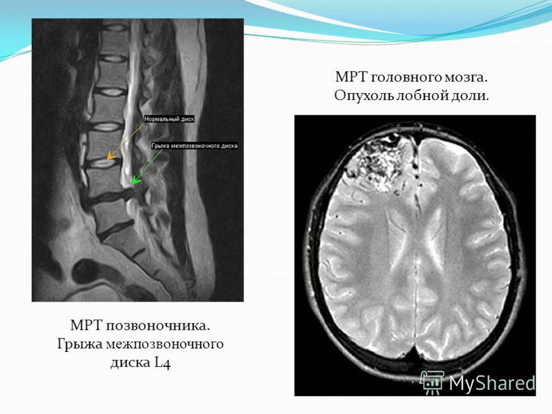 МРТ позвоночника. Грыжа межпозвоночного диска L4 МРТ головного мозга. Опухоль лобной доли.