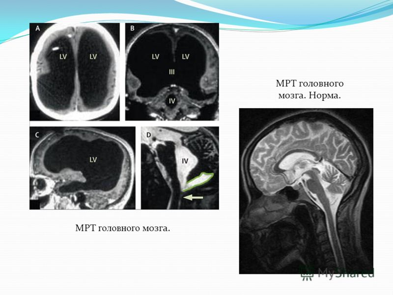 МРТ головного мозга. МРТ головного мозга. Норма.