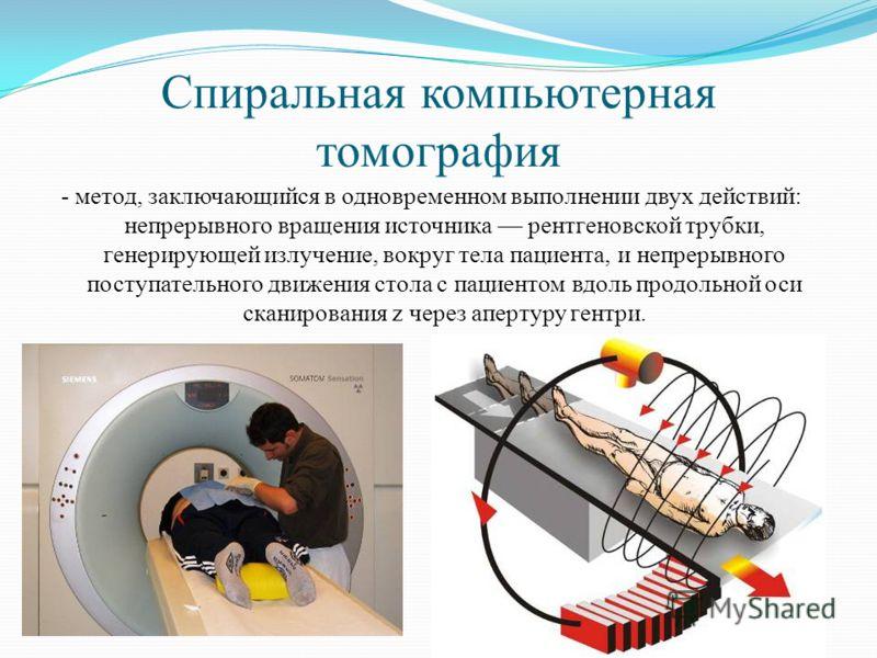 Спиральная компьютерная томография - метод, заключающийся в одновременном выполнении двух действий: непрерывного вращения источника рентгеновской трубки, генерирующей излучение, вокруг тела пациента, и непрерывного поступательного движения стола с па