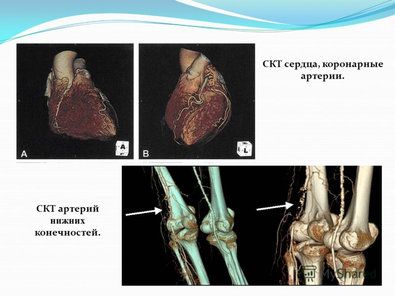 СКТ сердца, коронарные артерии. СКТ артерий нижних конечностей.