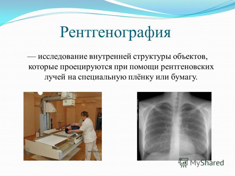 Рентгенография исследование внутренней структуры объектов, которые проецируются при помощи рентгеновских лучей на специальную плёнку или бумагу.