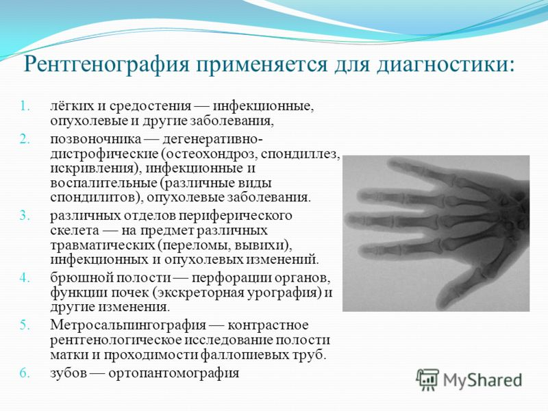 Рентгенография применяется для диагностики : 1. лёгких и средостения инфекционные, опухолевые и другие заболевания, 2. позвоночника дегенеративно- дистрофические (остеохондроз, спондиллез, искривления), инфекционные и воспалительные (различные виды с