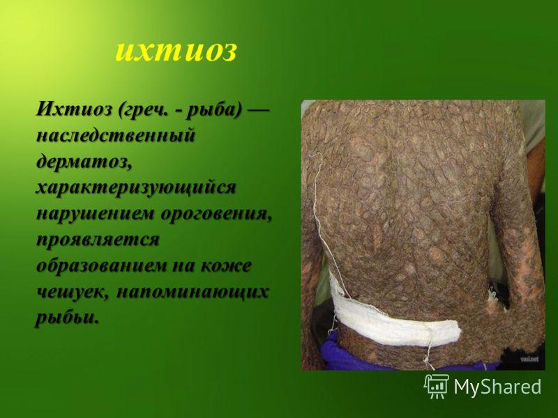 ихтиоз Ихтиоз (греч. - рыба) наследственный дерматоз, характеризующийся нарушением ороговения, проявляется образованием на коже чешуек, напоминающих рыбьи.