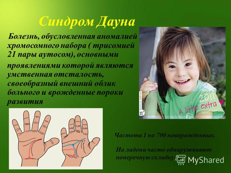 Синдром Дауна Болезнь, обусловленная аномалией хромосомного набора ( трисомией 21 пары аутосом), основными проявлениями которой являются умственная отсталость, своеобразный внешний облик больного и врожденные пороки развития На ладони часто обнаружив