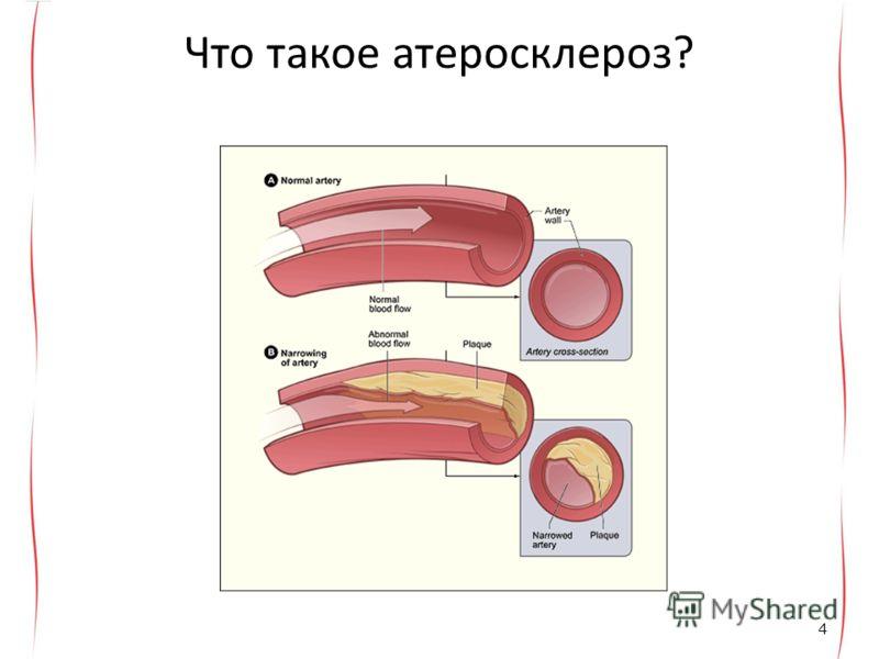 Что такое атеросклероз? 4