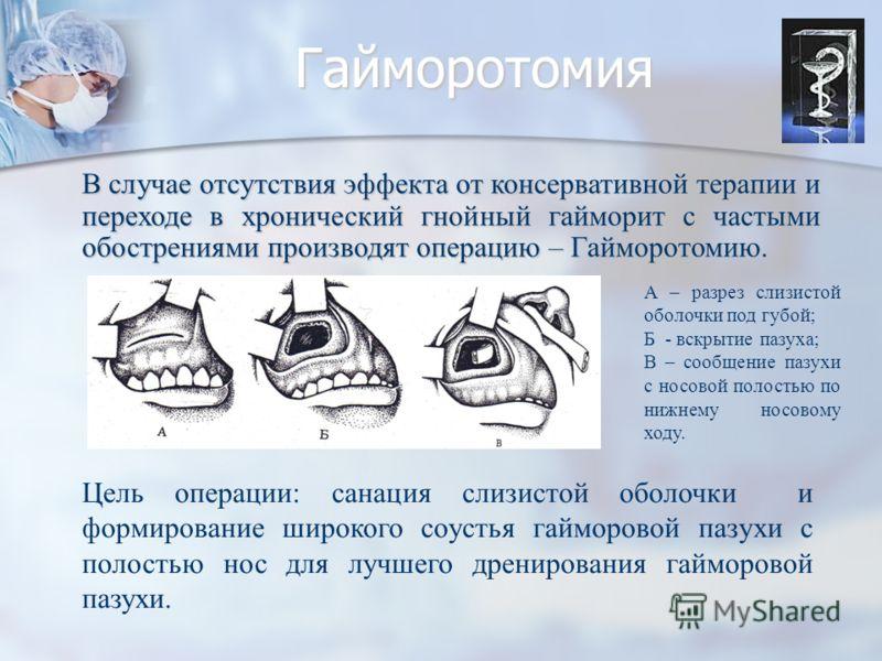 Гайморотомия Цель операции: санация слизистой оболочки и формирование широкого соустья гайморовой пазухи с полостью нос для лучшего дренирования гайморовой пазухи. В случае отсутствия эффекта от консервативной терапии и переходе в хронический гнойный