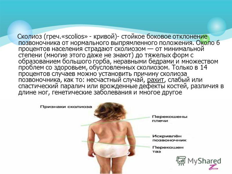 Сколиоз (греч.«scolios» - кривой)- стойкое боковое отклонение позвоночника от нормального выпрямленного положения. Около 6 процентов населения страдают сколиозом от минимальной степени (многие этого даже не знают) до тяжелых форм с образованием больш