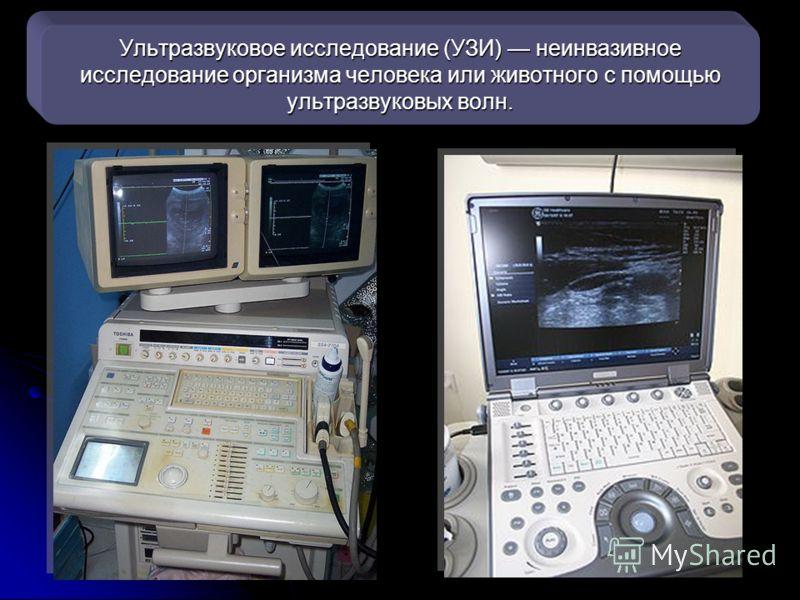 Ультразвуковое исследование (УЗИ) неинвазивное исследование организма человека или животного с помощью ультразвуковых волн.