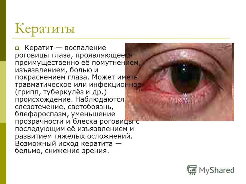 Кератиты Кератит воспаление роговицы глаза, проявляющееся преимущественно её помутнением, изъязвлением, болью и покраснением глаза. Может иметь травматическое или инфекционное (грипп, туберкулёз и др.) происхождение. Наблюдаются слезотечение, светобо