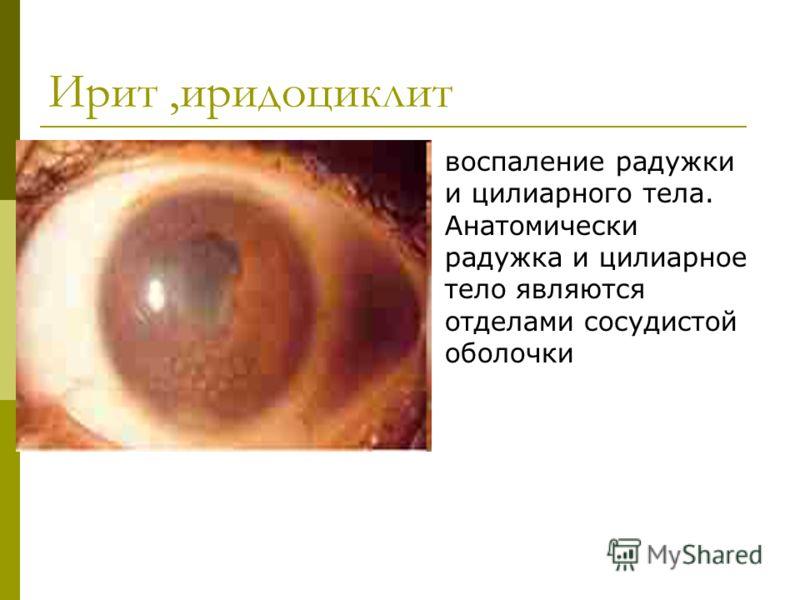 Ирит,иридоциклит воспаление радужки и цилиарного тела. Анатомически радужка и цилиарное тело являются отделами сосудистой оболочки
