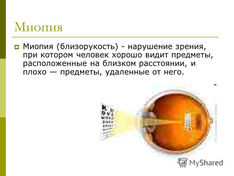 Миопия Миопия (близорукость) - нарушение зрения, при котором человек хорошо видит предметы, расположенные на близком расстоянии, и плохо предметы, удаленные от него.