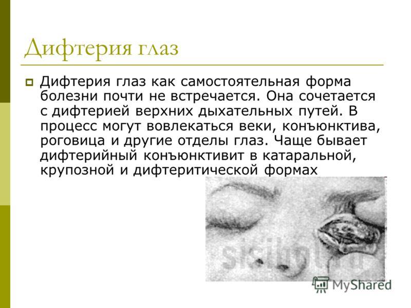 Дифтерия глаз Дифтерия глаз как самостоятельная форма болезни почти не встречается. Она сочетается с дифтерией верхних дыхательных путей. В процесс могут вовлекаться веки, конъюнктива, роговица и другие отделы глаз. Чаще бывает дифтерийный конъюнктив