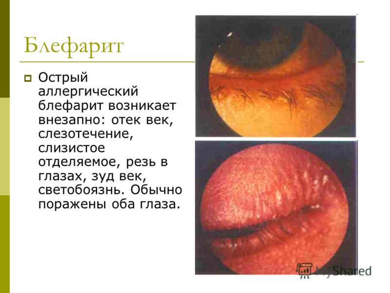 Блефарит Острый аллергический блефарит возникает внезапно: отек век, слезотечение, слизистое отделяемое, резь в глазах, зуд век, светобоязнь. Обычно поражены оба глаза.